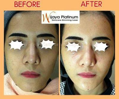 Harga Perawatan di Wijaya Skin care