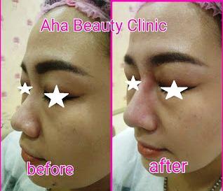 Harga perawatan di AHA beauty clinic