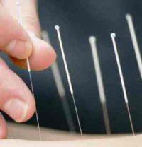 Harga Jarum Akupuntur