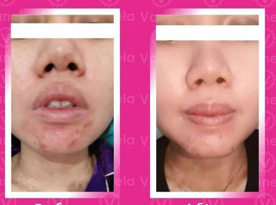 Harga Perawatan di Vanela Beauty Care
